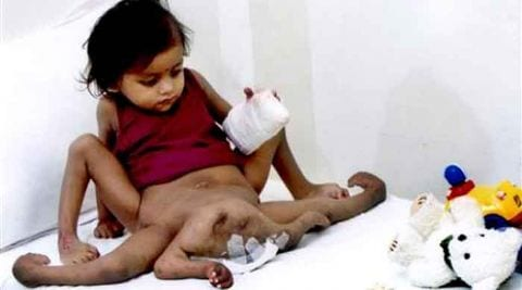 The Indian Girl Who Had Four Limbs Removed